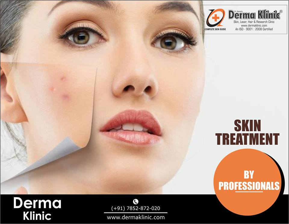 Laser Skin Treatment in Hazratganj