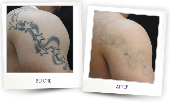 Laser tattoo removal in Lucknow