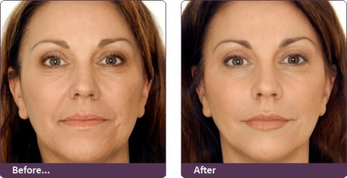 Botox treatment which gives your skin new birth