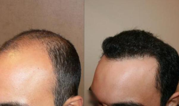 Hair transplant to get rid from the hair loss problems