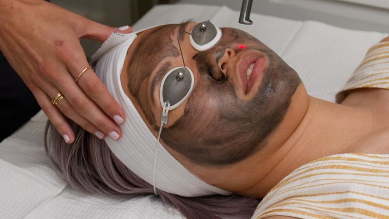 Peels Treatment in Lucknow