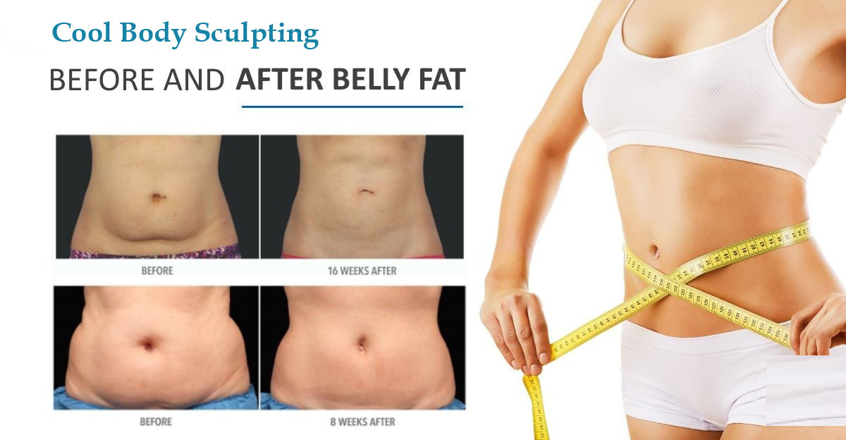 Cool Sculpting in Lucknow, UP, India - Derma klinic
