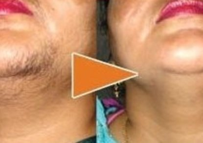 Hair transplant in lucknow
