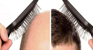 Best hair transplant in Hazratganj Lucknow